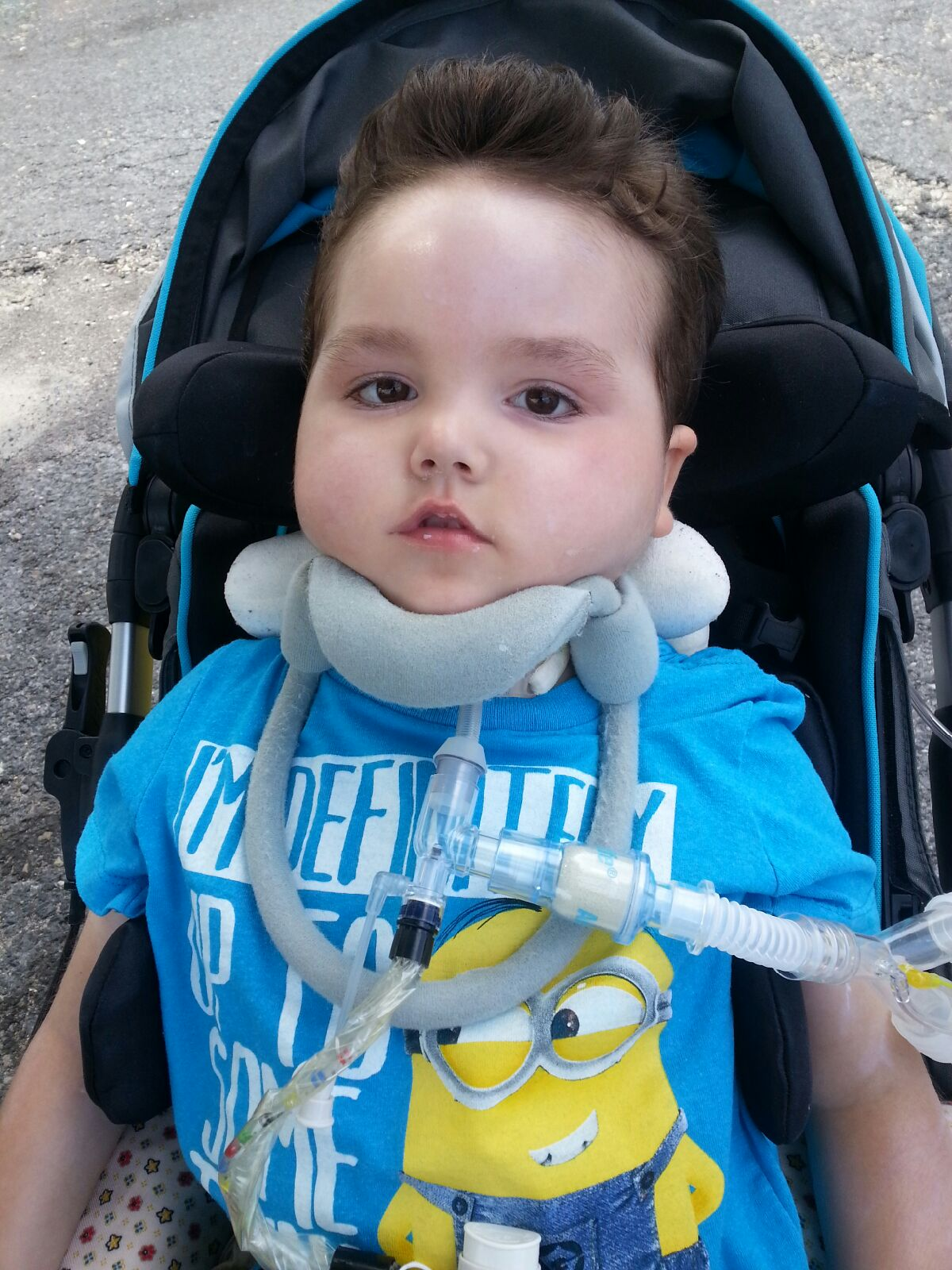 Young Arthur Jr. suffers from TK-2 mitochondrial DNA depletion syndrome, a rare disease